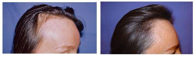 micro greffe cheveux avant apres